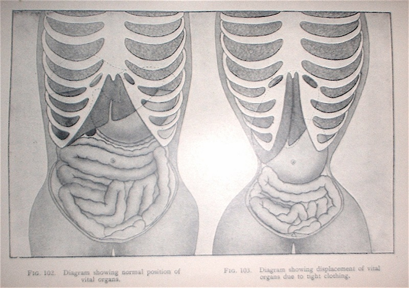 "Kristin Holt | Corsets in the Era: Yes, even Maternity Corsets. Image is a diagram (of antiquity) showing in figures 102 ""normal position of vital orans"", and figure 103 ""diagram showing displacement of vital orans due to tight clothing."""