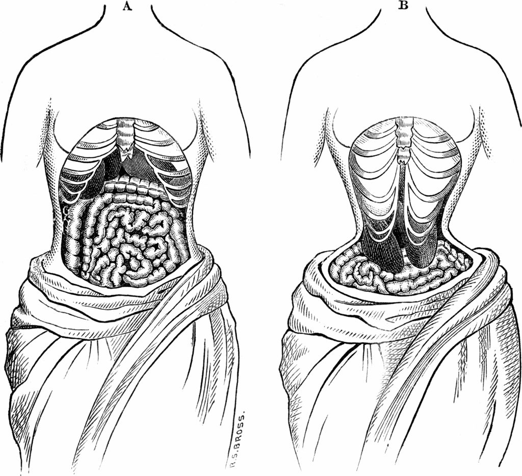 Kristin Holt | Defect in Form: Evils of Tight Lacing (a.k.a. Corsets), 1897. Two sketches from 1884 depicting what, at the time, was believed the way the inside of the body looked when wearing a corset (also a natural female midsection), including distortion of organs.