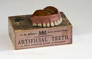 Kristin Holt   Late Victorian Dentistry: Ultra Modern! Photgraph of Vulcanite (rubber) dentures, 1850.