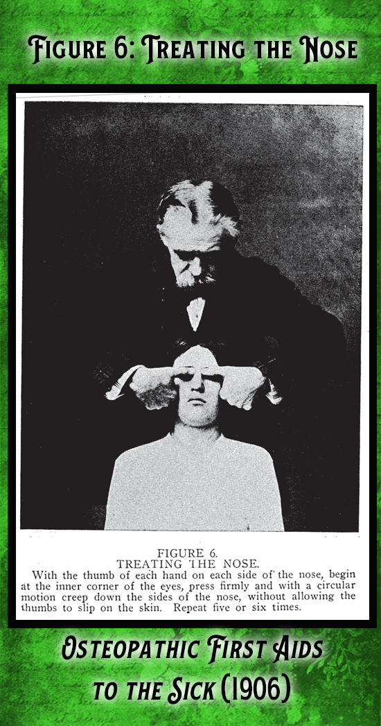 Kristin Holt | Victorian-American Headaches: Part 7. Figure 6 from Osteopathic First Aids to the Sick (1906). Treating the Nose, one step of the headache treatment.